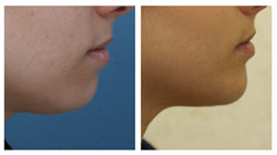 Chin Augmentation Photogallery - Chicago