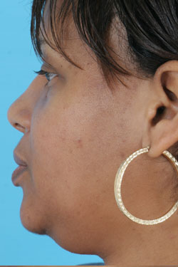 rhinoplasty photos - patient 27 - after 2