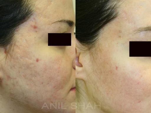 Acne Scars before and after pictures in Chicago, IL, Patient 290
