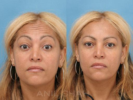 Botox Fillers before and after pictures in Chicago, IL, Patient 394