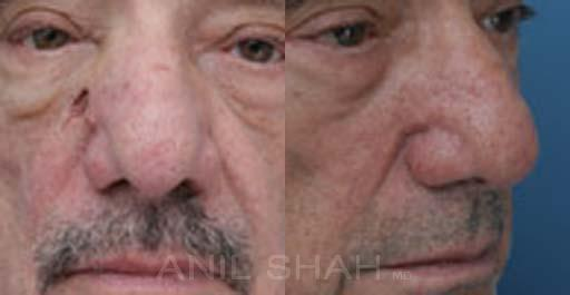 Facial Reconstruction before and after pictures in Chicago, IL, Patient 450