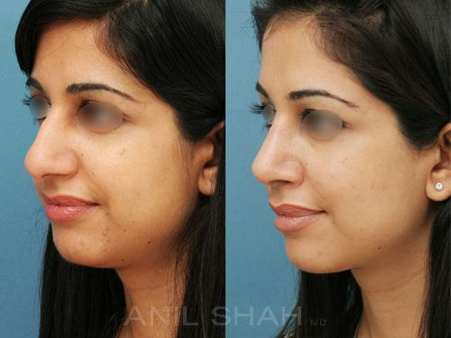 Rhinoplasty before and after pictures in Chicago, IL, Patient 602