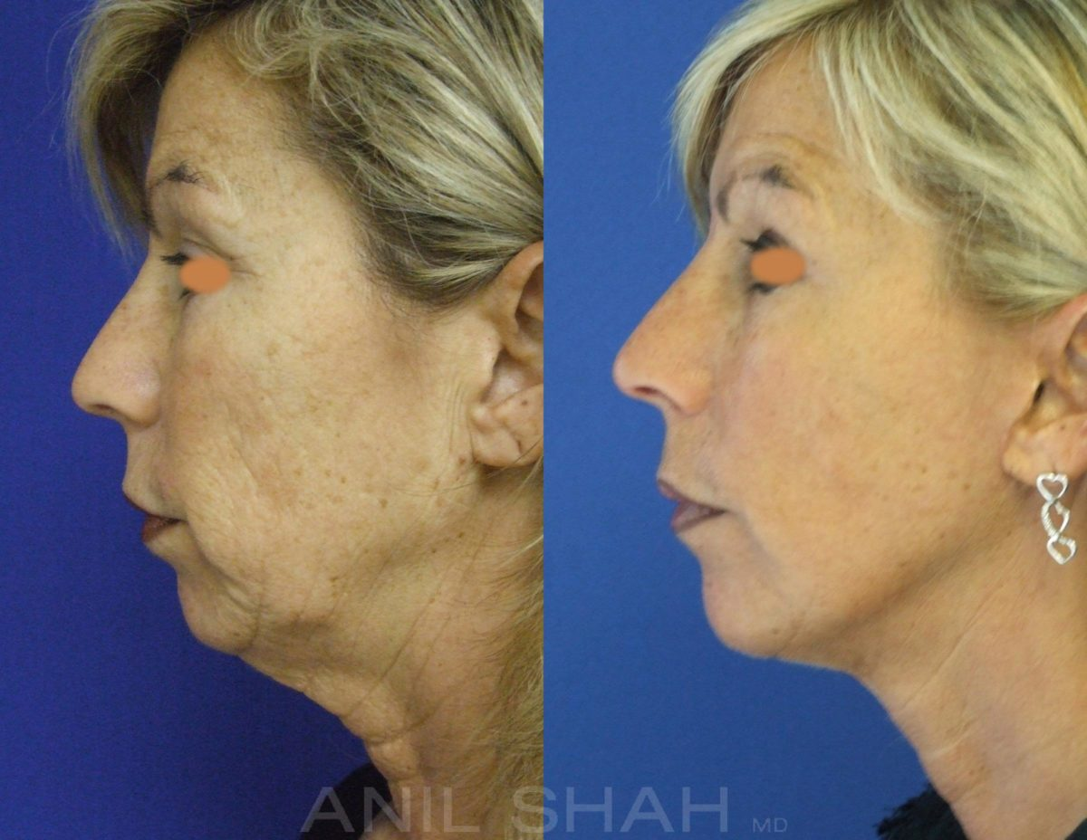Aging Face before and after pictures in Chicago, IL, Patient 364