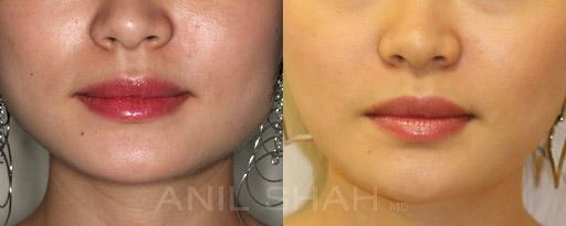 Botox Fillers before and after pictures in Chicago, IL, Patient 403